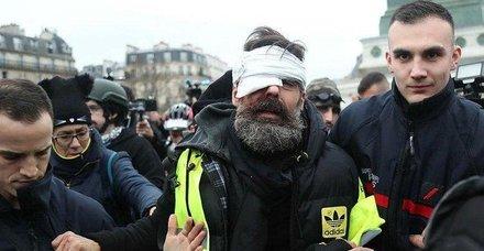 Fransa'da polis Flash-Ball mermisi kullandı 100 kişi gözünü kaybetti!
