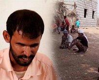 Genetik bozukluk Yemende bir köyü kör etti