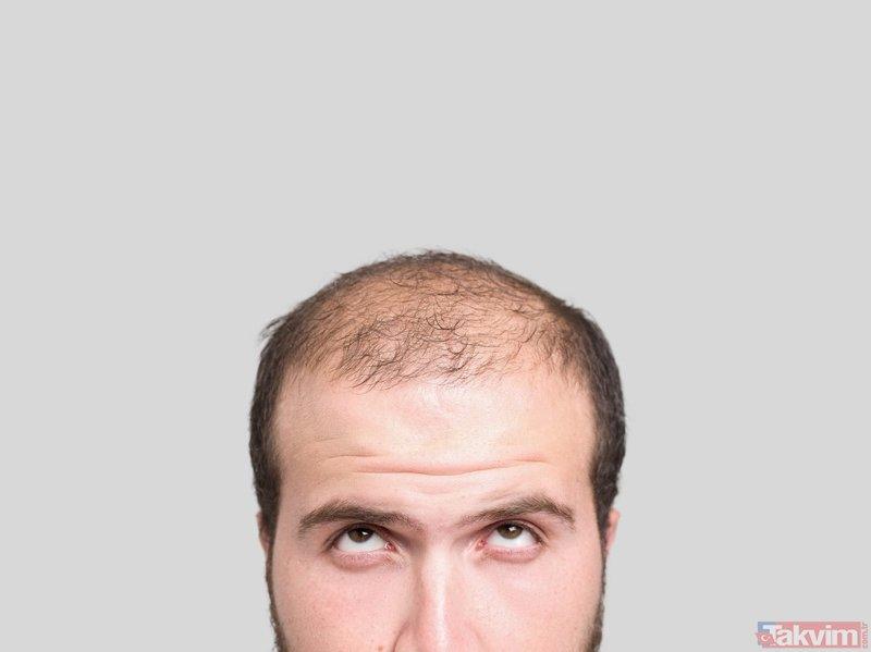 Saçı dökülenler dikkat! İşte saç dökülmesine iyi gelen yemek!