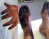 Vücudu döküntüsü şikayetiyle doktora gitti bu hale geldi!