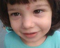 2 yaşındaki kız çocuğunun talihsiz ölümü