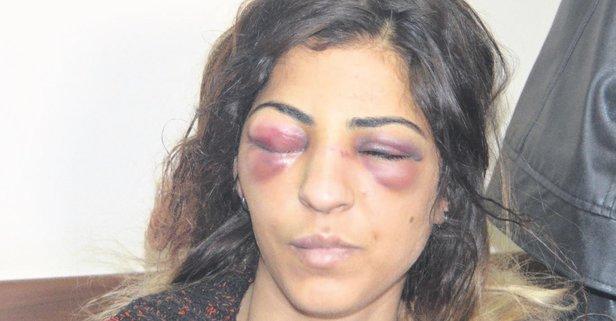 Kadına şiddetin fotoğrafı