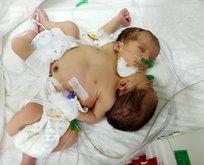 O yapışık ikizler Türkiye'de