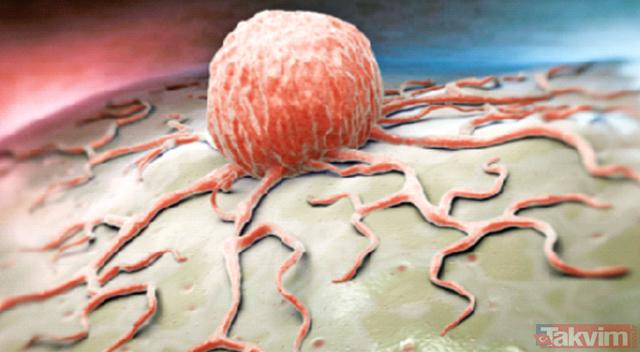 Kanserin düşmanı olan o besin herkesi şaşırttı! Kanser nedir, nasıl tedavi edilir?