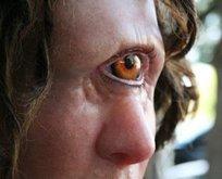 Rüyada tek göz görmek ne anlama gelir?