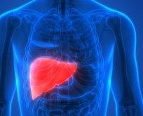 Karaciğerin rengi kırmızı