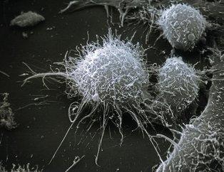 Bu belirtiler kanseri haber veriyor! İşte göz ardı etmemeniz gereken 16 kanser belirtisi