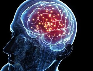 Bilim adamlarından şaşırtan açıklama! Beyni de yaşlandırıyor!