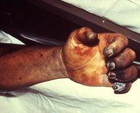 Tarihin en büyük salgını 'Kara Ölüm' yeniden ortaya çıktı