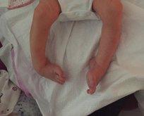 Doktorun ihmali bebeği bu hale getirdi!