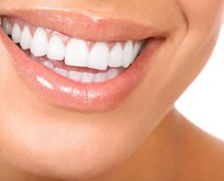 Harika dişler