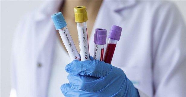Dünyada koronavirüs vaka sayısı 1,5 milyonu aştı
