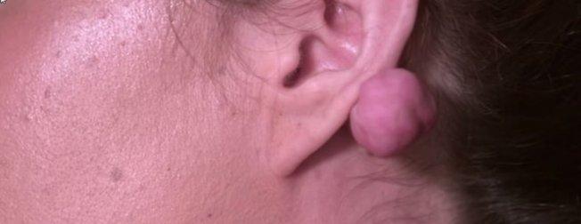 Kulağını deldirmek isteyen kadının hayatı kabusa döndü