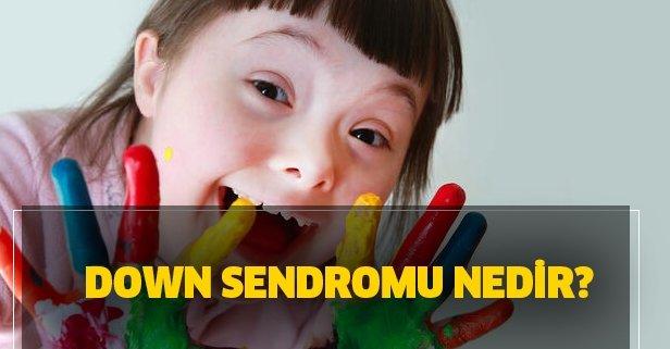 Down Sendromu nedir? Down Sendromu belirtileri neler, tedavisi var mı?