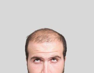 Saç dökülmesi neden olur? Saç dökülmesi sebepleri ve tedavi yöntemleri