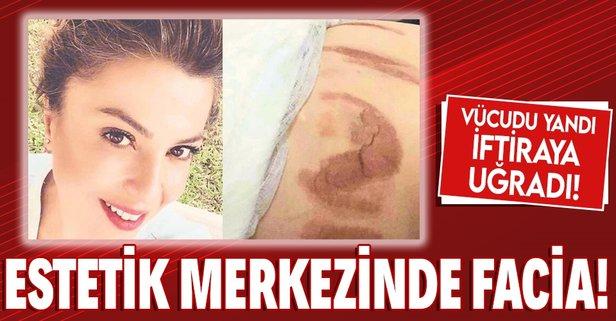 Estetik merkezinde facia! Genç kadının vücudu yandı, iftiraya uğradı!