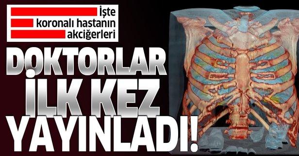 Koronalı akciğerin 3D görüntüsü