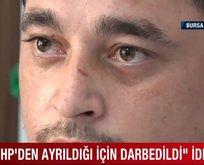 CHP'den istifa ettiği için darbedildi