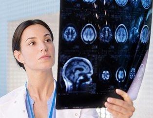 Beyin tümörü kişilikte veya davranışta değişikliklere neden olabilir! Bu belirtiler beyin tümörünün habercisi...