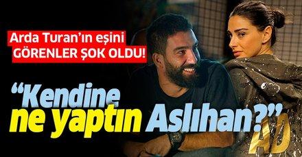 Arda Turan'ın eşi Aslıhan Turan'ı görenler şok oldu: Dudağına ne oldu Aslı...