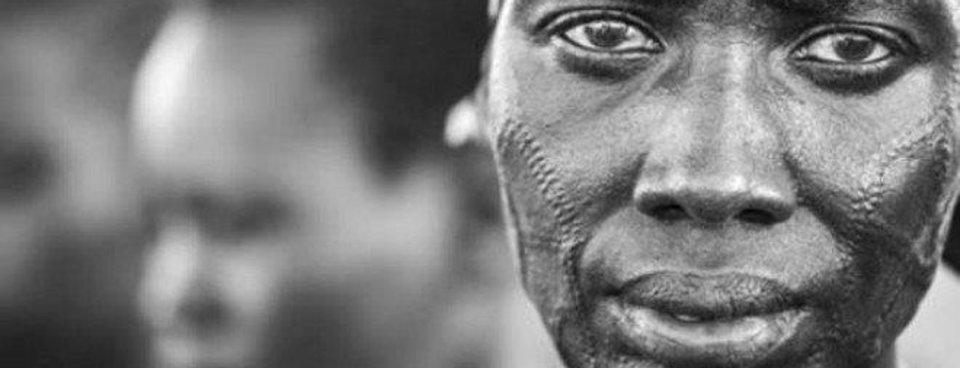 Güney Sudan'da korkunç gelenek! Yüzlerini bıçakla...