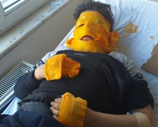 Erzurum'da ateşle oyun feci bitti! Yüzü tamamen yandı