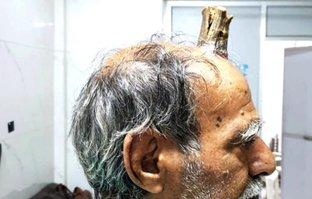 Hastaneye kafasında boynuzla geldi! Böylesi ne görüldü ne de duyuldu...