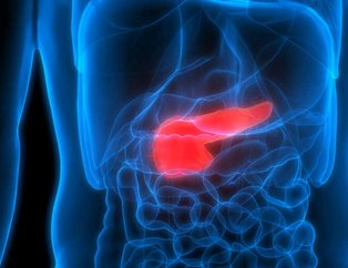Pankreas kanseri erkeklerde daha sık görünüyor! İşte pankreas kanserinin belirtileri...