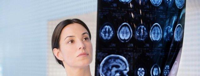 Dikkat! Bu belirtiler beyin tümörünün habercisi...