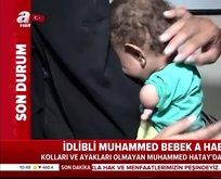 Türkiye'de tedavi ediliyor