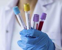 2 dev şirketten koronavirüse karşı ortak hamle