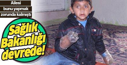 Sağlık Bakanlığı, ısırmasın diye ellerine pet şişe geçirilen küçük Yusuf için harekete geçti!