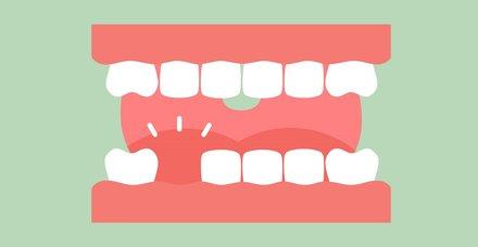 Rüyada diş çıktığını görmek ne anlama gelir?