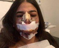 Burun operasyonu için kulağını kesti