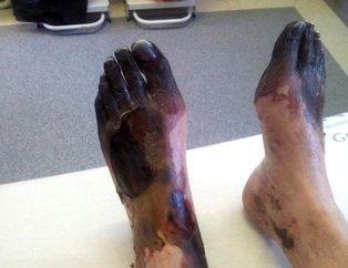 Vücut döküntüsü şikayetiyle doktora gitti bu hale geldi!