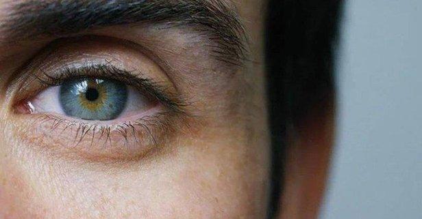 Sarı nokta hastalığı 55 yaşını bekler