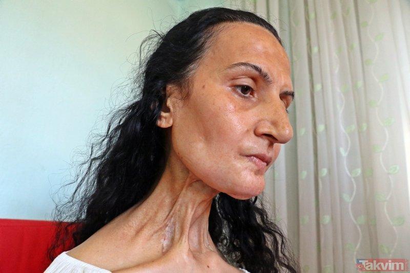 Dil kanserine yakalandı, hayatları karardı! Bacağından yeni dil yapıldı