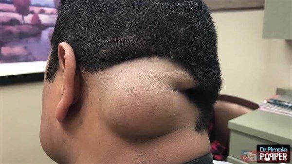 Baş ağrısı için doktora gitti kafasından çıkanlar herkesi şoke etti