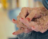 Ellerinde başladı tüm vücudunu sardı