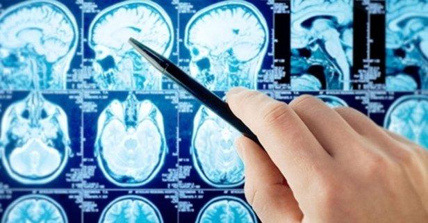 ALS hastalığı nedir? ALS hastalığı belirtileri nelerdir? Tedavisi var mı?