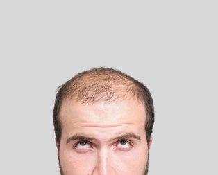 Saçı dökülenlere mucizevi çözüm