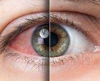 Yeni belirti kırmızı göz