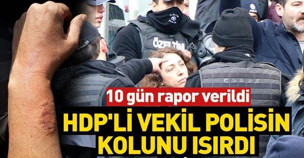 HDP'li vekil kadın polis memurunun kolunu ısırdı