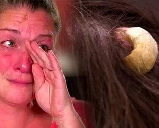 Kafasından boynuz çıkan kadın tıp dünyasını şoke etti