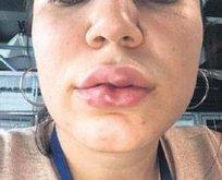 Sosyeteyi 'kiss'tirdi