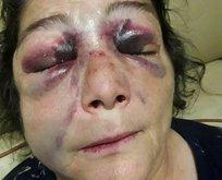 Tezel: CHP'liler dövünce kadına şiddet olmuyor mu?
