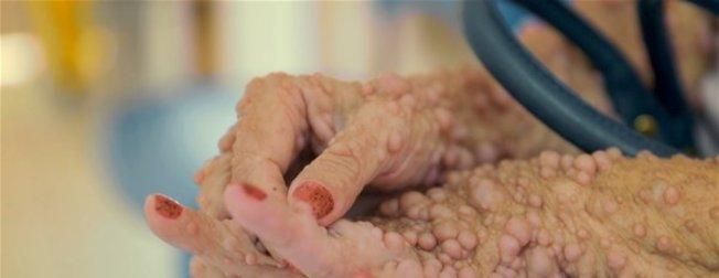 Doktorlar şoke oldu! Ellerinde başladı tüm vücudunu sardı! İnanılmaz olay görenler hayrete düştü