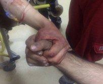 Afrinde yaralanan askerlerin yüreklere dokunan fotoğrafı