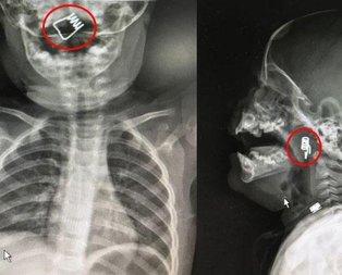 Korkunç! 1 yaşındaki bebeğin boğazında tespit edildi