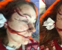Genç kadına falçatalı dehşet! Boşanmak isteyen eşinin yüzünü parçaladı!